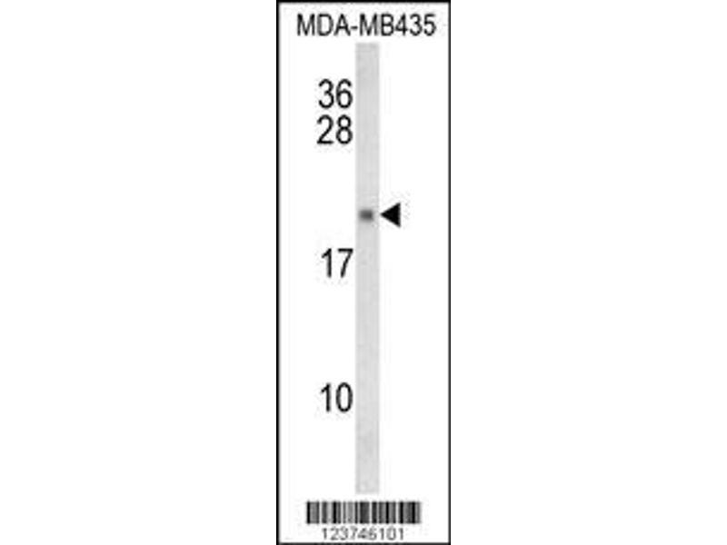 Western Blotting (WB) image for anti-Interleukin 12 (IL12) antibody (ABIN652878)
