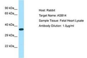 Image no. 1 for anti-Ankyrin Repeat and SOCS Box Containing 14 (ASB14) (AA 45-94) antibody (ABIN6750157)