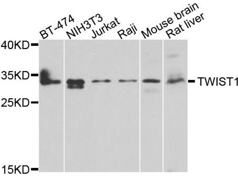 Western Blotting (WB) image for anti-TWIST1 antibody (Twist Homolog 1 (Drosophila)) (ABIN4905524)