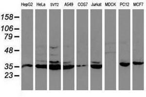 Image no. 8 for anti-Cytochrome P450, Family 2, Subfamily A, Polypeptide 6 (CYP2A6) antibody (ABIN1497724)