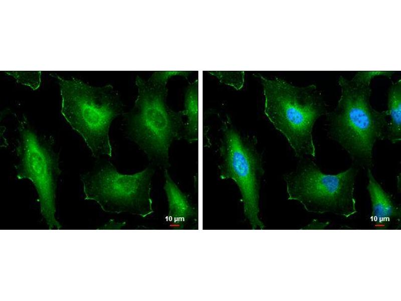 Immunofluorescence (IF) image for anti-Cortactin antibody (CTTN) (N-Term) (ABIN2854674)