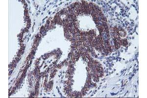 Immunohistochemistry (IHC) image for anti-Arachidonate 15-Lipoxygenase (ALOX15) antibody (ABIN2455524)