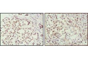 Immunohistochemistry (Paraffin-embedded Sections) (IHC (p)) image for anti-MSH2 antibody (ABIN151294)