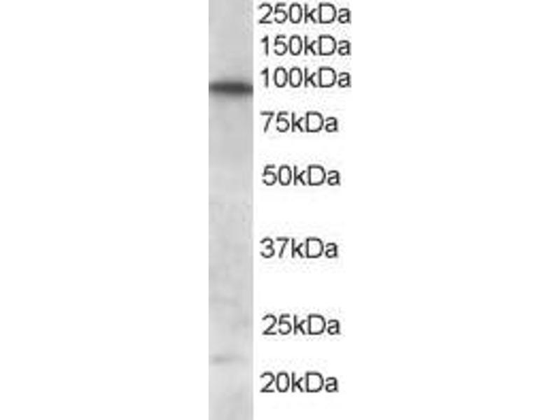 Image no. 2 for anti-Forkhead Box O3 (FOXO3) (C-Term) antibody (ABIN185248)
