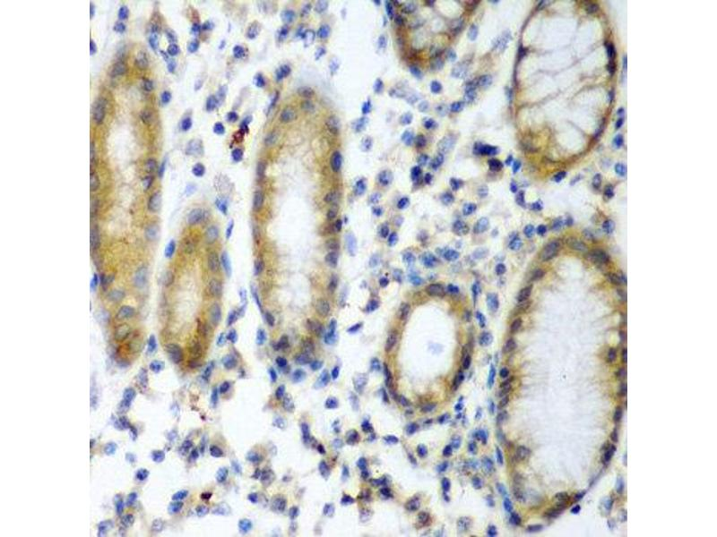 Immunohistochemistry (IHC) image for anti-Suppressor of Cytokine Signaling 2 (SOCS2) antibody (ABIN1876904)