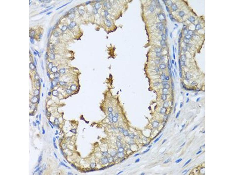 Image no. 2 for anti-ATG5 Autophagy Related 5 Homolog (S. Cerevisiae) (ATG5) antibody (ABIN6566496)