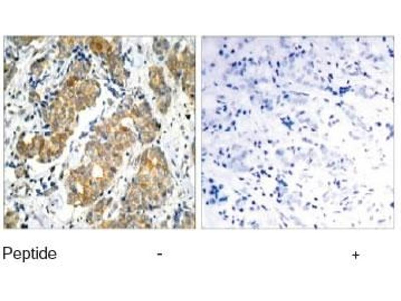 Immunohistochemistry (IHC) image for anti-GSK3 alpha antibody (Glycogen Synthase Kinase 3 alpha) (ABIN257307)