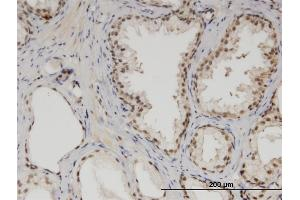 Image no. 2 for anti-Mediator Complex Subunit 6 (MED6) (AA 1-246) antibody (ABIN523374)