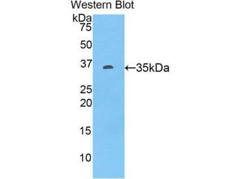 Western Blotting (WB) image for anti-Tumor Necrosis Factor (Ligand) Superfamily, Member 10 (TNFSF10) (AA 40-291) antibody (ABIN1172422)