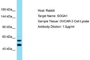 Image no. 1 for anti-Suppressor of Glucose, Autophagy Associated 1 (SOGA1) (C-Term) antibody (ABIN2791610)