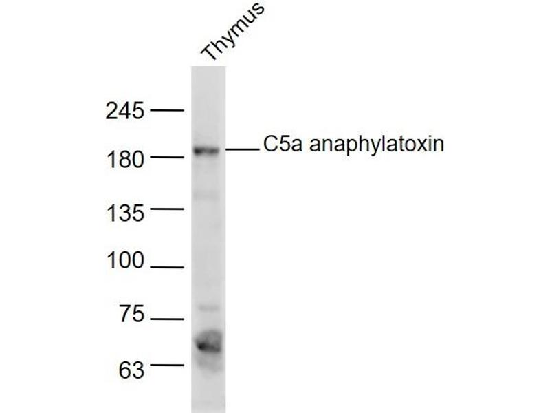 image for anti-Complement Component 5 (C5) (AA 700-755) antibody (ABIN727875)
