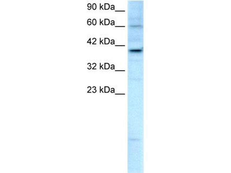 Western Blotting (WB) image for anti-Kinesin Family Member 25 (KIF25) (C-Term) antibody (ABIN182907)