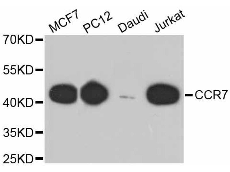 Western Blotting (WB) image for anti-Chemokine (C-C Motif) Receptor 7 (CCR7) antibody (ABIN4903164)