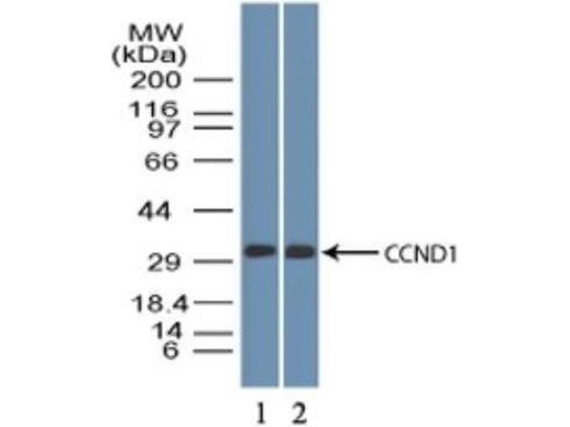 Western Blotting (WB) image for anti-Cyclin D1 (CCND1) antibody (ABIN4301538)