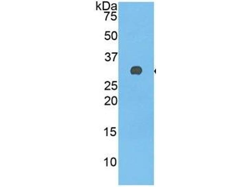Complement Factor H (CFH) ELISA Kit (3)