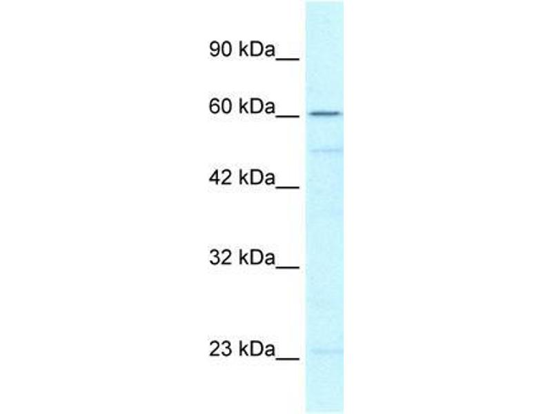 Western Blotting (WB) image for anti-ZNF212 antibody (Zinc Finger Protein 212) (N-Term) (ABIN1109567)