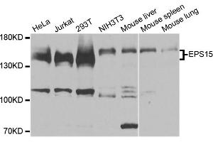 Image no. 1 for anti-Epidermal Growth Factor Receptor Pathway Substrate 15 (EPS15) antibody (ABIN6572023)