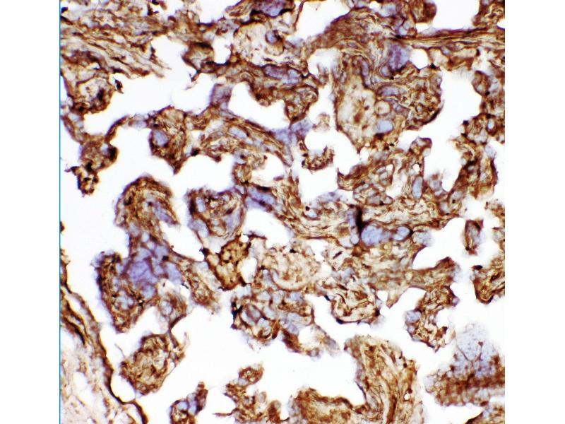 Immunohistochemistry (IHC) image for anti-Heat Shock 27kDa Protein 1 (HSPB1) (AA 1-205) antibody (ABIN3042464)