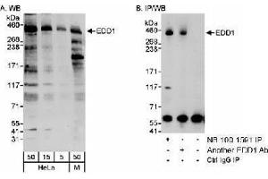 Western Blotting (WB) image for anti-Ubiquitin Protein Ligase E3 Component N-Recognin 5 (UBR5) (AA 600-650) antibody (ABIN151138)
