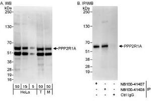 Western Blotting (WB) image for anti-PPP2R1A Antikörper (Protein Phosphatase 2, Regulatory Subunit A, alpha) (C-Term) (ABIN188577)
