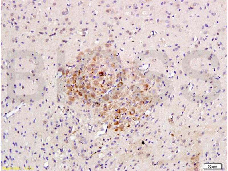 Immunohistochemistry (IHC) image for anti-Caspase 3, Apoptosis-Related Cysteine Peptidase (CASP3) (AA 60-100) antibody (ABIN724625)