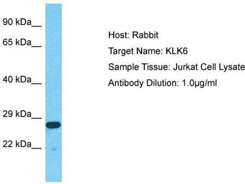 Western Blotting (WB) image for anti-Kallikrein 6 antibody (KLK6) (N-Term) (ABIN2778179)