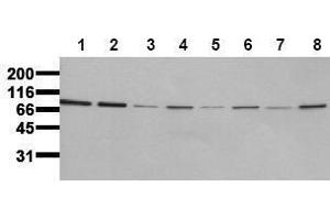 Western Blotting (WB) image for anti-Insulin Receptor (INSR) (Beta Chain) antibody (ABIN126821)