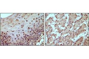 Immunohistochemistry (IHC) image for anti-Retinoblastoma 1 antibody (RB1) (ABIN1108867)