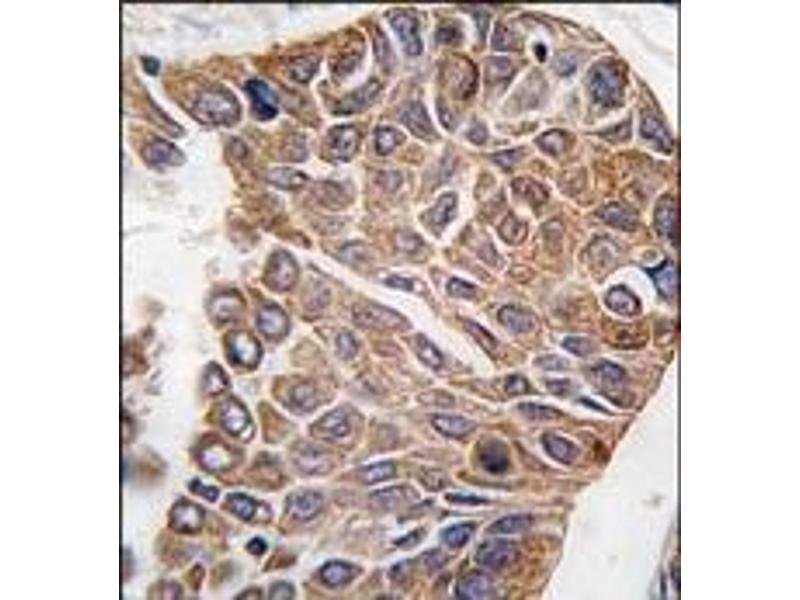 Immunohistochemistry (Paraffin-embedded Sections) (IHC (p)) image for anti-AKT2 antibody (V-Akt Murine Thymoma Viral Oncogene Homolog 2) (C-Term) (ABIN359079)
