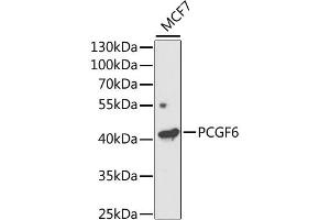 Image no. 1 for anti-Polycomb Group Ring Finger 6 (PCGF6) antibody (ABIN6570101)