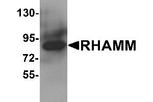 Image no. 1 for anti-Hyaluronan-Mediated Motility Receptor (RHAMM) (HMMR) (N-Term) antibody (ABIN1031538)