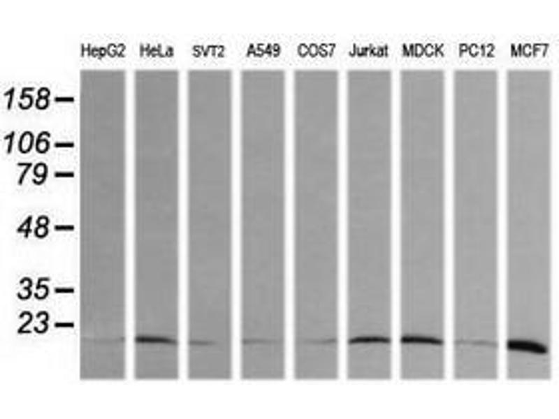 image for anti-HRAS antibody (V-Ha-Ras Harvey Rat Sarcoma Viral Oncogene Homolog) (ABIN1498713)