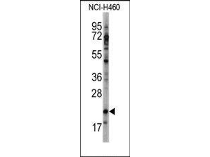 image for anti-Heart and Neural Crest Derivatives Expressed 2 (HAND2) (C-Term) antibody (ABIN358596)