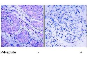 image for anti-PDPK1 antibody (3-phosphoinositide Dependent Protein Kinase-1) (pSer241) (ABIN196616)