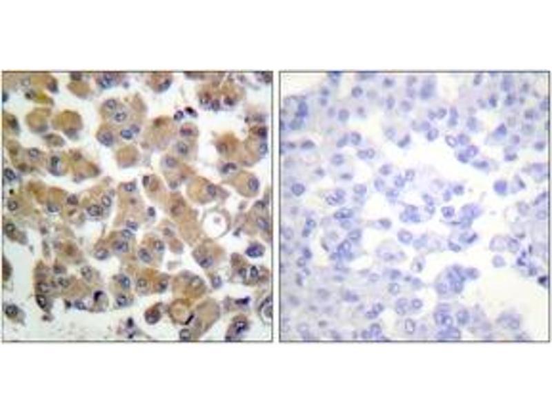 Immunohistochemistry (IHC) image for anti-Transforming Growth Factor, beta 1 (TGFB1) (AA 336-385) antibody (ABIN1533412)