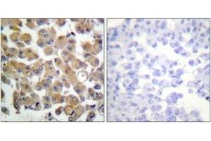 Immunohistochemistry (IHC) image for anti-TGFB1 antibody (Transforming Growth Factor, beta 1) (ABIN1533412)