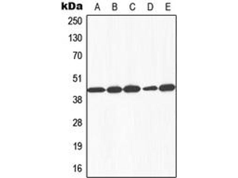Image no. 2 for anti-Galactokinase 1 (GALK1) (N-Term) antibody (ABIN2707521)