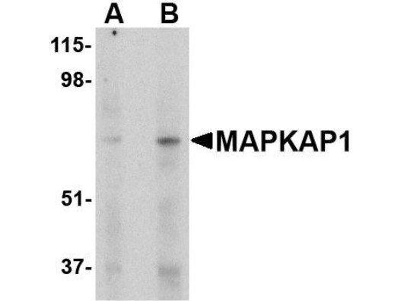 Western Blotting (WB) image for anti-MAPKAP1 antibody (Mitogen-Activated Protein Kinase Associated Protein 1) (Center) (ABIN4353812)
