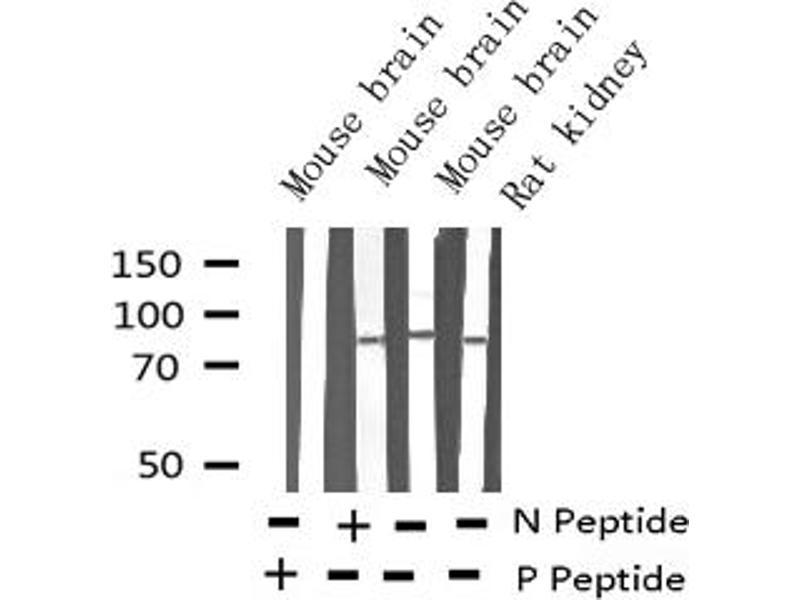 Western Blotting (WB) image for anti-Microtubule-Associated Protein tau (MAPT) (pSer262) antibody (ABIN6256228)