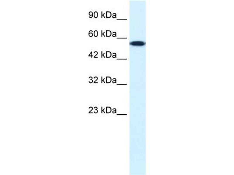 Western Blotting (WB) image for anti-CHEK1 antibody (Checkpoint Kinase 1) (Middle Region) (ABIN182614)