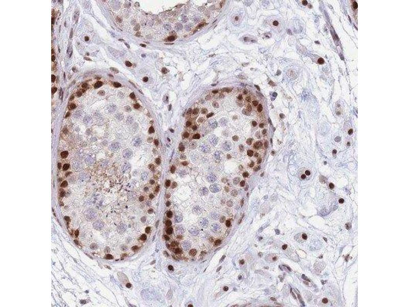 Immunohistochemistry (IHC) image for anti-DnaJ (Hsp40) Homolog, Subfamily C, Member 3 (DNAJC3) antibody (ABIN4305626)