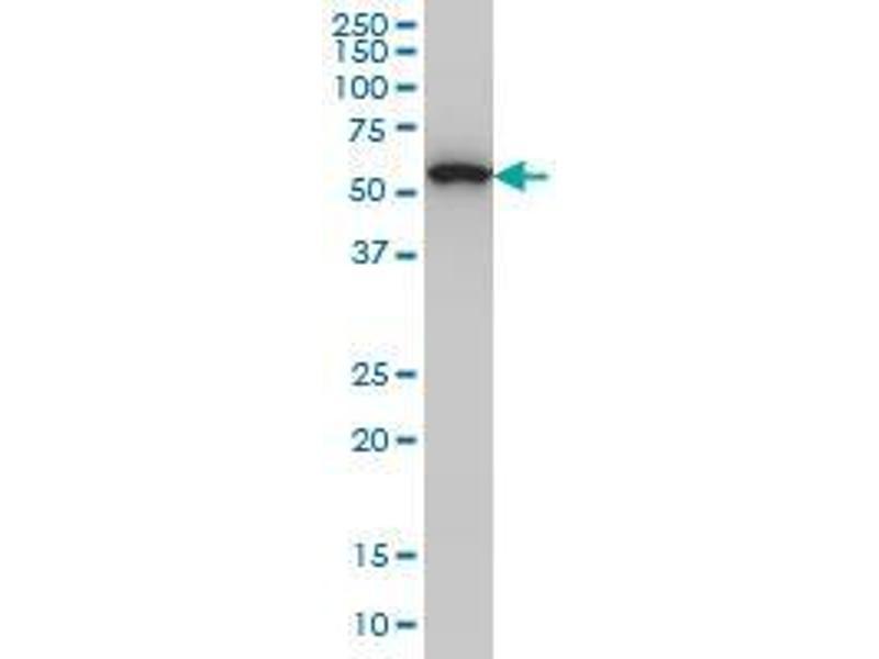 Immunohistochemistry (IHC) image for anti-Oxidative-Stress Responsive 1 (OXSR1) (Met16) antibody (ABIN393659)