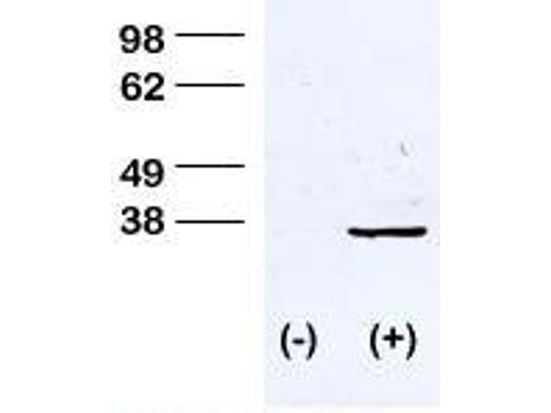 Western Blotting (WB) image for anti-CDK1 antibody (Cyclin-Dependent Kinase 1) (pThr161) (ABIN389536)