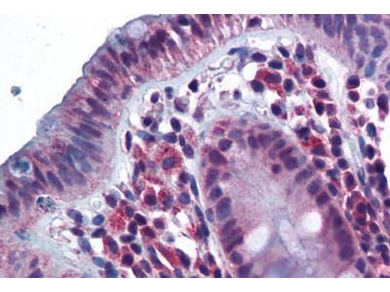 Immunohistochemistry (Paraffin-embedded Sections) (IHC (p)) image for anti-CD180 Molecule (CD180) (N-Term) antibody (ABIN343899)