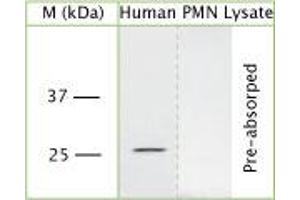 Western Blotting (WB) image for anti-Proteinase 3 (PRTN3) (N-Term) antibody (ABIN350767)