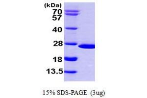 Image no. 1 for Nudix (Nucleoside Diphosphate Linked Moiety X)-Type Motif 16 (NUDT16) (AA 1-195) protein (His tag) (ABIN667321)