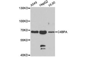 Image no. 1 for anti-Complement Component 4 Binding Protein, alpha (C4BPA) antibody (ABIN6137773)