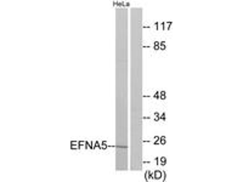 Western Blotting (WB) image for anti-Ephrin A5 (EFNA5) (AA 31-80) antibody (ABIN1533775)