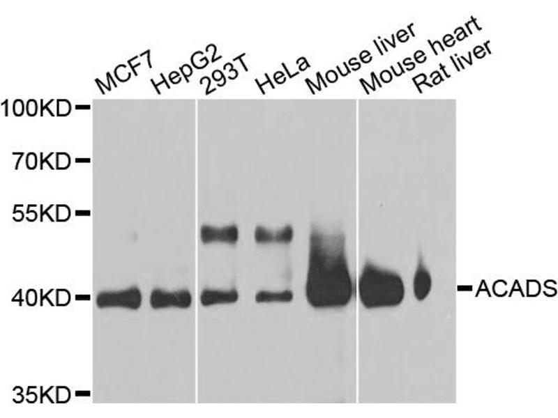 Image no. 3 for anti-Acyl-CoA Dehydrogenase, C-2 To C-3 Short Chain (Acads) antibody (ABIN6566701)