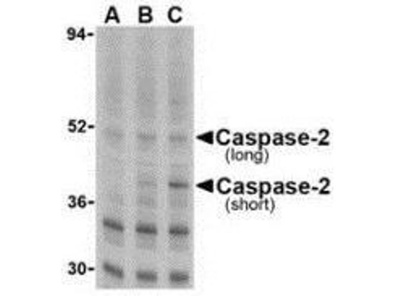 Western Blotting (WB) image for anti-Caspase 2 antibody (Caspase 2, Apoptosis-Related Cysteine Peptidase) (N-Term) (ABIN499559)